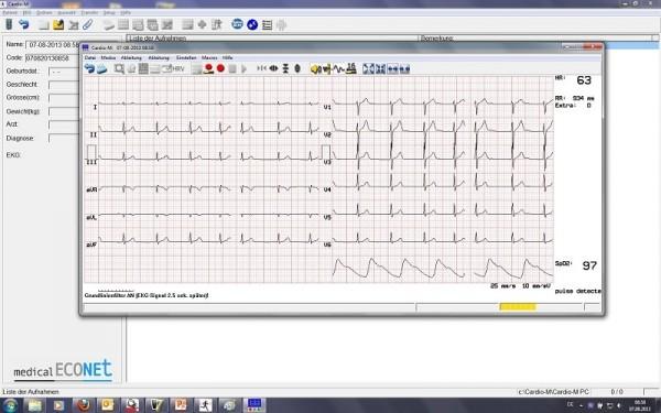 Cardio M-PC PC EKG System
